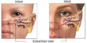 感冒幾天後耳朵痛痛?談談急性中耳炎